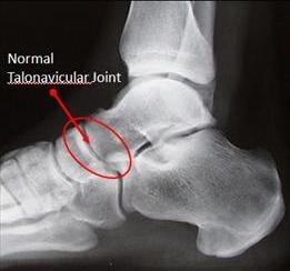 Figure-1-Talonavicular-Arthritis_thumb