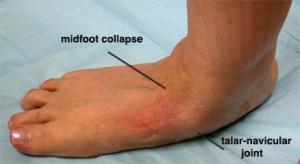 flatfoot-medial-view