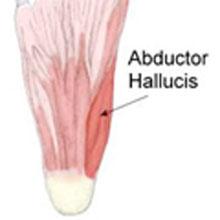 abductor-hallucis-strain220